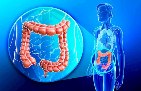 what-is-colon-infection